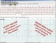 Cardiología / Holter Arritmia Holter lx Ž Analysis Software NorthEast Monitoring