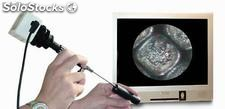 ENDOSCOPIO VIDEO ENDO/2-100