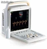 Ultrasonograf usg Chison q5 color doppler system